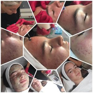 Tratament facial Acnee 1