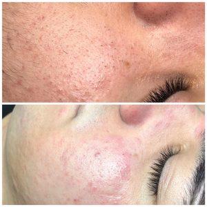 Promotie Terapii corporale si faciale 3