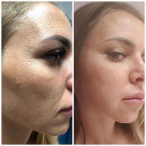 Promotie Terapii corporale si faciale 2