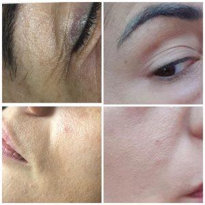 Promotie Terapii corporale si faciale 4