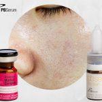 Tratament facial Acnee 4